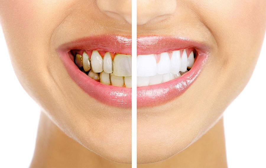 Sunstar Settima Toothpaste Whitening